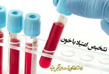 آزمایش اعتیاد خون