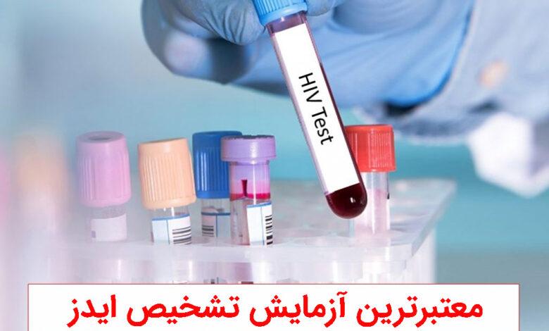 معتبرترین آزمایش ایدز کدام است