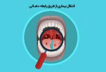انتقال بیماری از طریق رابطه دهانی