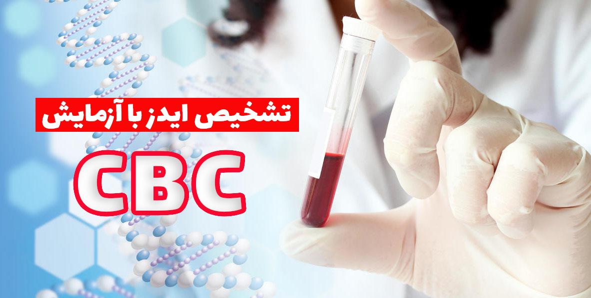 تشخیص ایدز با آزمایش CBC