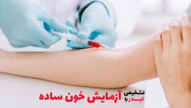 تشخیص ایدز با آزمایش خون ساده