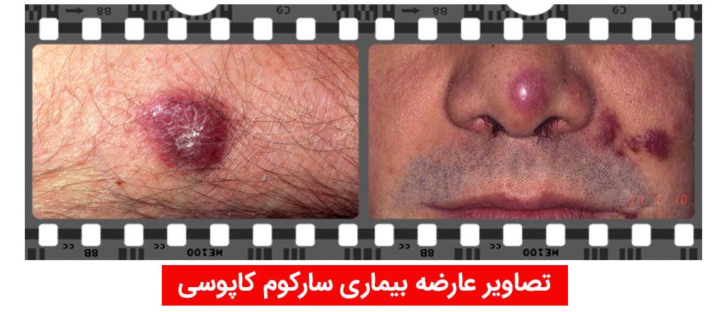 عکس علامت پوستی ایدز