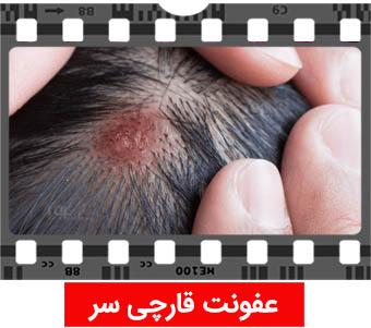 عفونت قارچی سر علامت ایدز