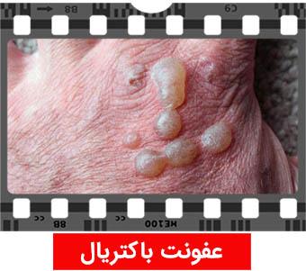عکس عفونت باکتریال ایدز