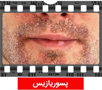 عکس پسوريازيس علامت ایدز