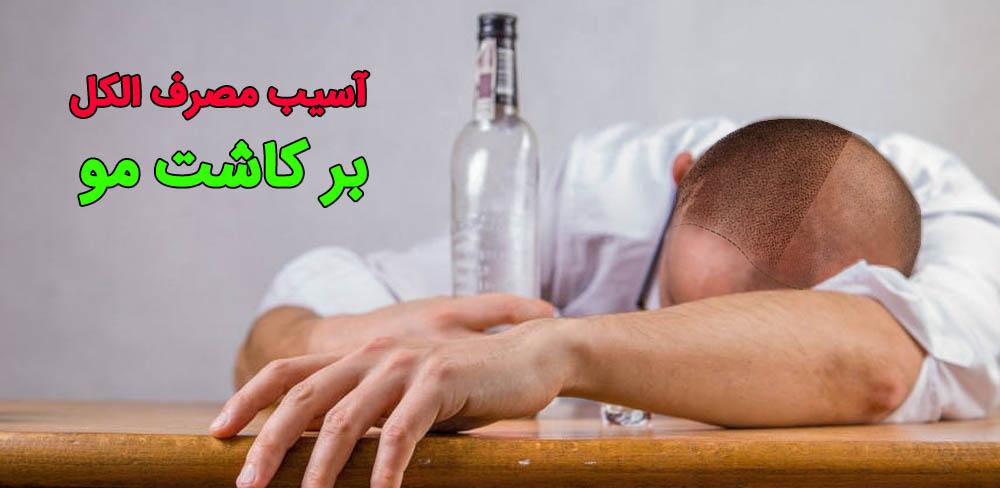 مصرف الکل بعد کاشت مو