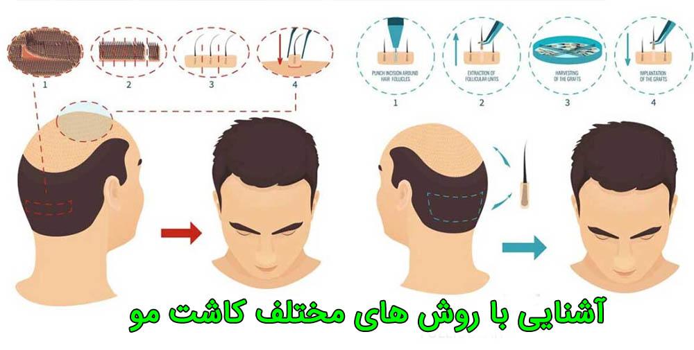 مصرف مواد برای کاشت مو